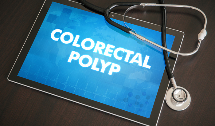 Optimizing Colorectal Cancer and Polyp Surveillance after Colorectal Polypectomy